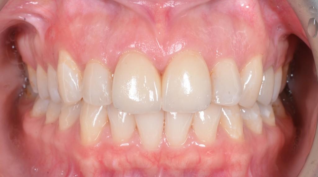 אחרי - תוצאה אסתטית של שיניים קדמיות וחניכיים בריאות (טכנאי - רוני נחום, טופלאב)