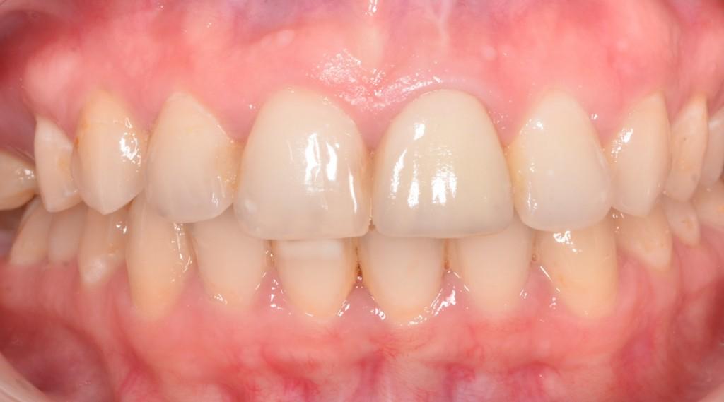 אחרי - תיקון השן, ומתאר החניכיים חתוך