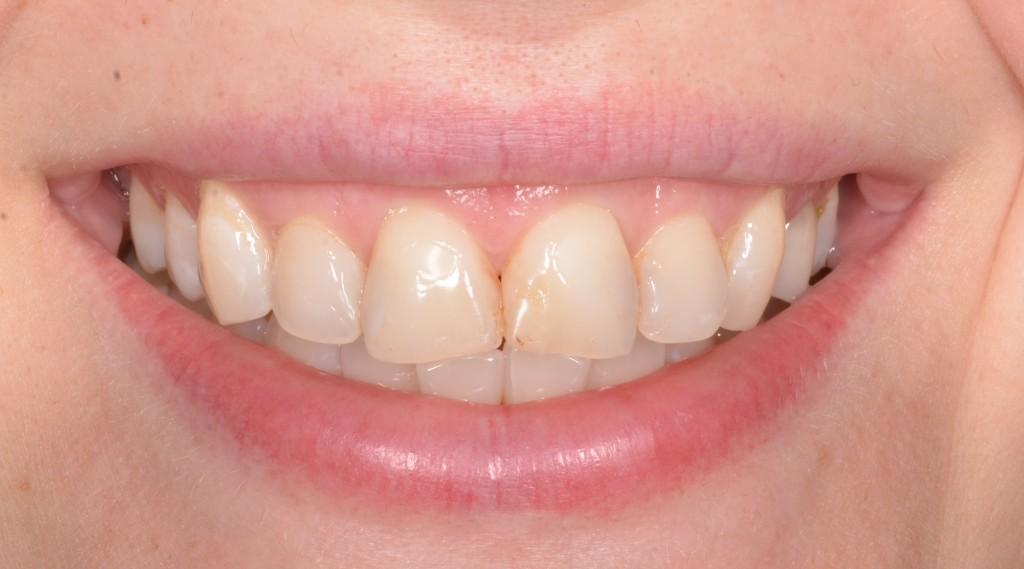 לפני - שיניים קדמיות עם שחזורים גדולים והרוסים, קו לא אחיד שמפריע אסתטית