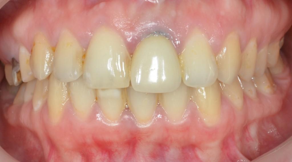 תלונה אסתטית על מיקום וצורת שן וצביעה בחניכיים חתוך