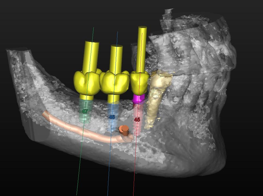 תכנון ממוחשב של שתלים קרוב מאד לעצב הלסת